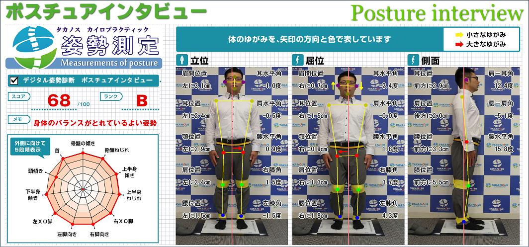 デジタル姿勢診断ポスチュアインタビュー(施術後)