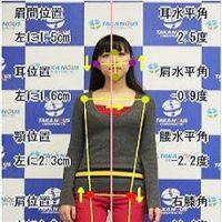 デジタル姿勢診断ポスチュアインタビュー|福岡市の整体タカノスカイロプラクティック