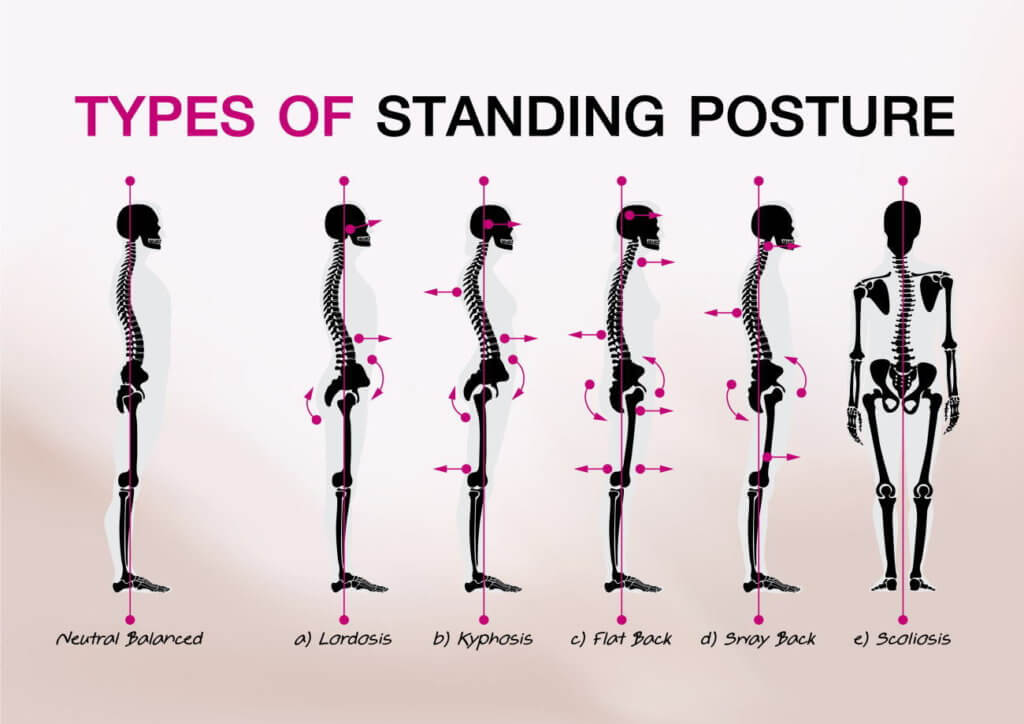 姿勢の分類カテゴリー